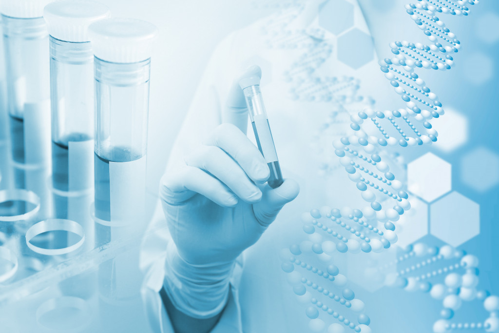Why Diagnostic Testing Is Critical in Fighting off the Pandemic?